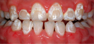 Decalcified teeth caused by poor brushing and oral hygiene habits