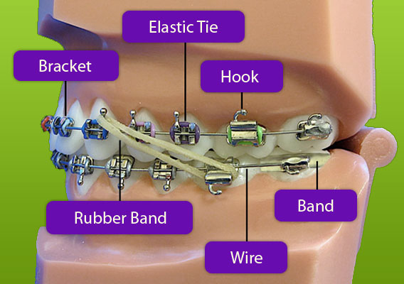 Braces Diagram Berkman & Shapiro Orthodontics, Commerce Township, MI 48382
