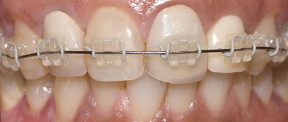 Ceramic Braces Berkman & Shapiro Orthodontics, Commerce Township, MI 48382
