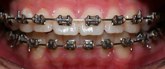 Metallic Braces Berkman & Shapiro Orthodontics, Commerce Township, MI 48382