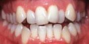 Crowded Teeth Berkman & Shapiro Orthodontics, Commerce Township, MI 48382