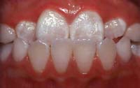 Glossary Anterior 1 Berkman & Shapiro Orthodontics, Commerce Township, MI 48382