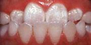 Underbite Teeth Berkman & Shapiro Orthodontics, Commerce Township, MI 48382