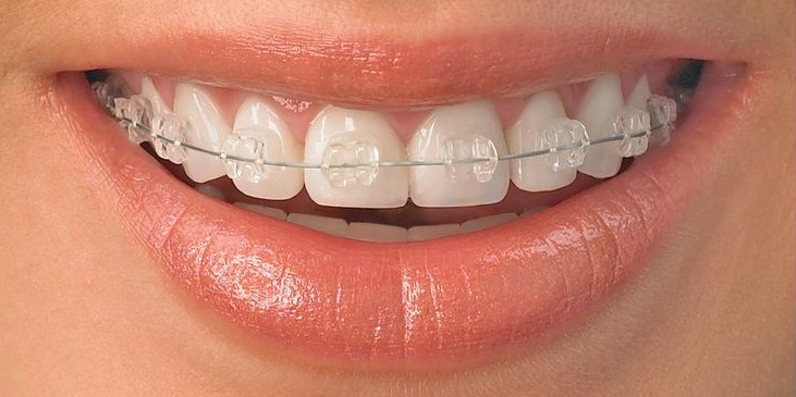 Clear Braces at Berkman & Shapiro Orthodontics, Commerce Township, MI 48382