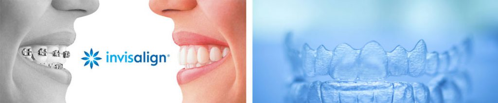 Invisalign Collage at Berkman & Shapiro Orthodontics, Commerce Township, MI 48382