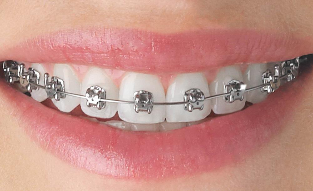 Silver Braces at Berkman & Shapiro Orthodontics, Commerce Township, MI 48382