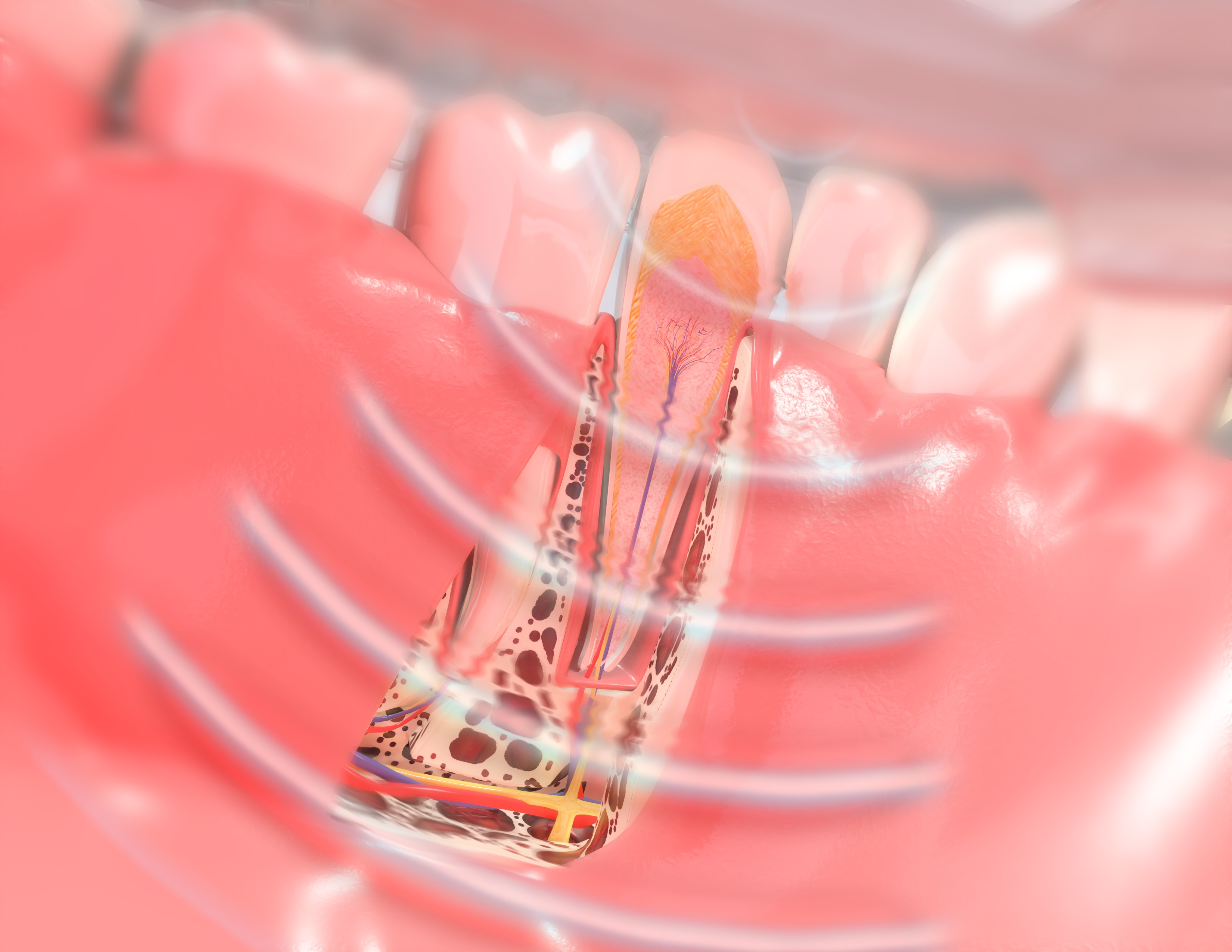 SoftPulse Technology at Berkman & Shapiro Orthodontics, Commerce Township, MI 48382
