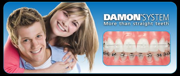 Damon Systems at Berkman & Shapiro Orthodontics, Commerce Township, MI 48382