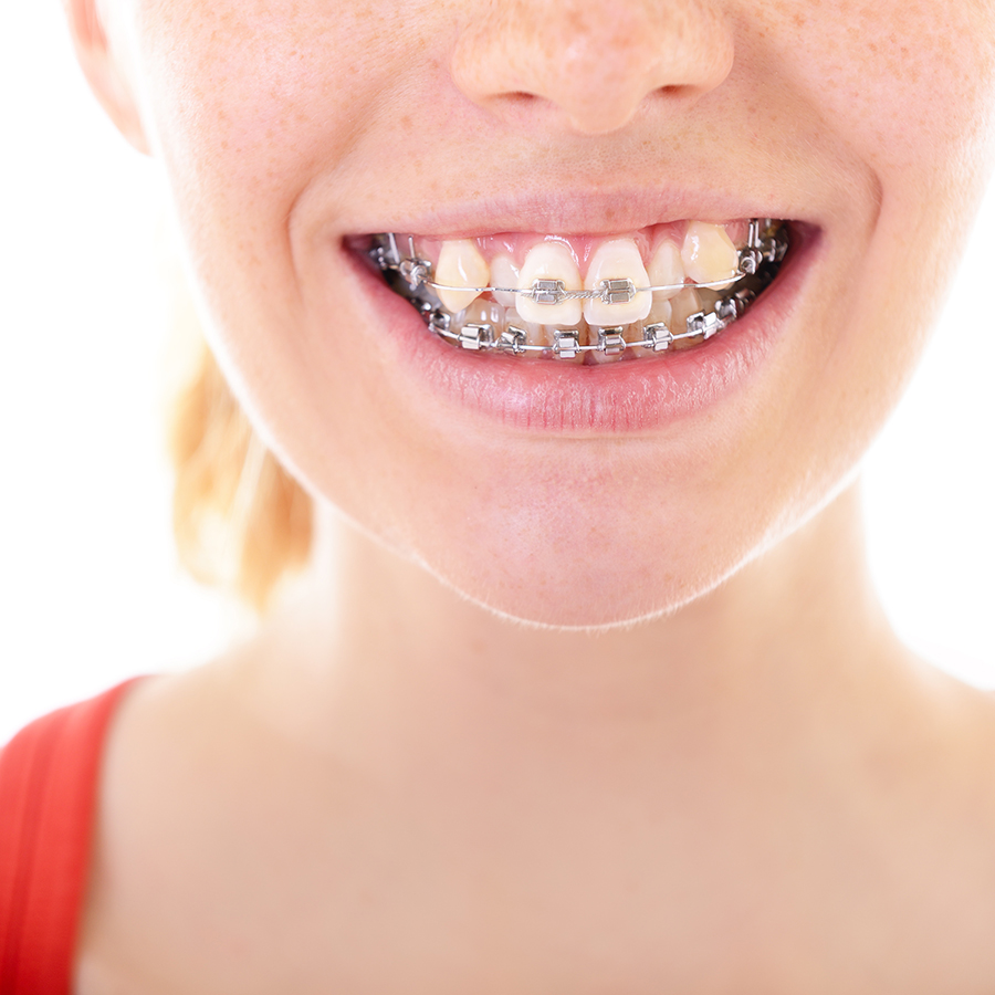 smiling girl with crooked teeth in braces