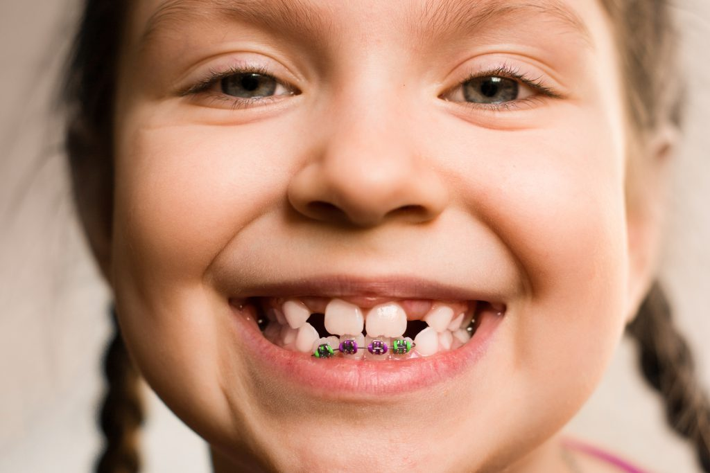 Close up portrait of Smiling girl showing braces