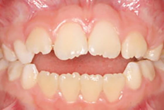 Teeth And Bite Misalignment Outstanding Ortho Blog