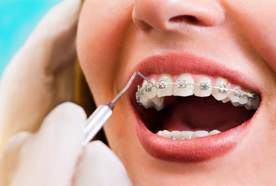 What Is Accelerated Orthodontics Outstanding Ortho Blog