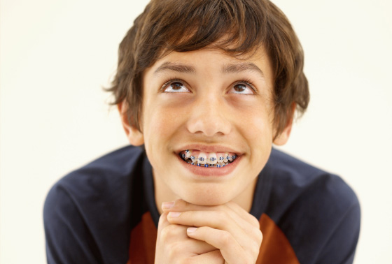 Your First Week With Braces Blog Outstanding Ortho Blog