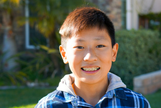 Common Questions Orthodontic Treatment From Parents 560px