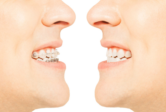 8 Signs You Should See An Orthodontist Outstanding Ortho