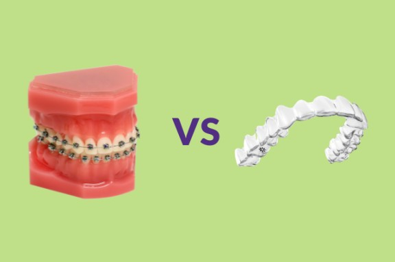 Is Invisalign Better Than Braces The Pros And Cons Of Each